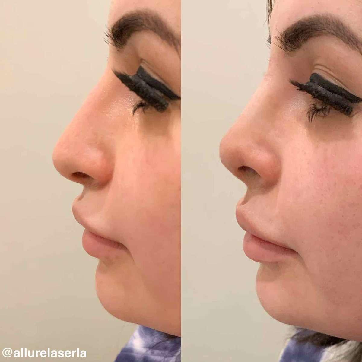 Nose Treatment