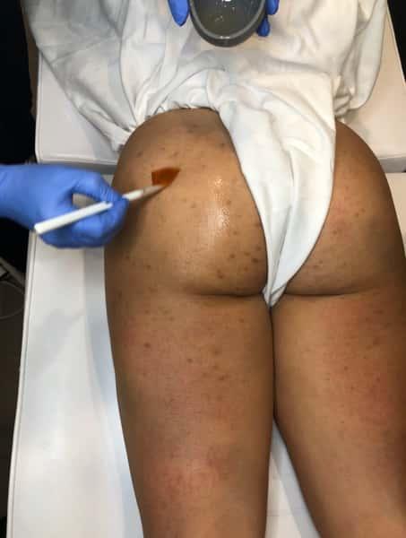 Smoothing Body Peel (Buttocks)